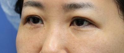 新宿ラクル美容外科クリニック 山本厚志 「切らない目の下のたるみ取り」「ジュビダームビスタ・ボリフト」手術後1週間目