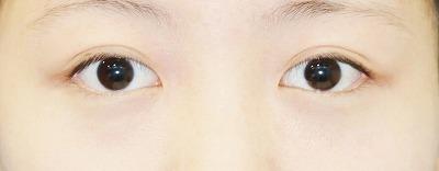 新宿ラクル美容外科クリニック 山本厚志 埋没法二重術(エクセレントアイ) 手術後1ヶ月目(3月29日)