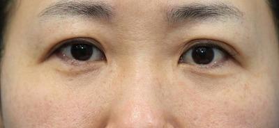 新宿ラクル美容外科クリニック 山本厚志 「切らない目の下のたるみ取り」「ジュビダームビスタ・ボリフト」手術後3ヶ月目