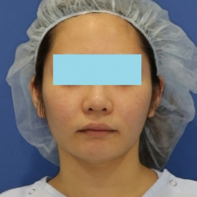 新宿ラクル美容外科クリニック 山本厚志 「ミントリフトⅡminiS flex(シークレットリフト)」 手術後3ヶ月目 4月7日