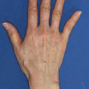 新宿ラクル美容外科クリニック 山本厚志 「手の若返り(ジュビダーム・ビスタ・ボリフト)」 治療前