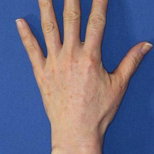 新宿ラクル美容外科クリニック 山本厚志 「手の若返り(ジュビダーム・ビスタ・ボリフト)」 治療直後