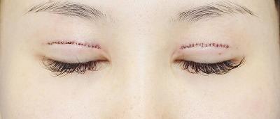 新宿ラクル美容外科クリニック 山本厚志 「全切開二重術+上まぶたの脂肪取り」 手術直後
