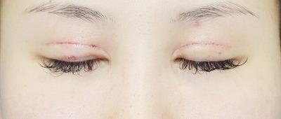 新宿ラクル美容外科クリニック 山本厚志 「全切開二重術+上まぶたの脂肪取り」 手術後1週間目