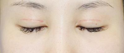 新宿ラクル美容外科クリニック 山本厚志 「全切開二重術+上まぶたの脂肪取り」 手術後1ヶ月目 5月7日