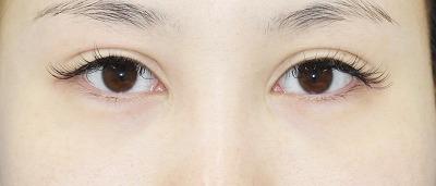 新宿ラクル美容外科クリニック 山本厚志 「全切開二重術+上まぶたの脂肪取り」 手術後3ヶ月目 5月7日