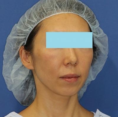 新宿ラクル美容外科クリニック 山本厚志 「ミントリフトⅡminiS flex(シークレットリフト)」 手術前 3月31日