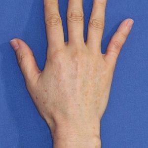 新宿ラクル美容外科クリニック 山本厚志 「手の若返り(ジュビダーム・ビスタ・ボリフト)」 治療後6ヶ月目 8月18日