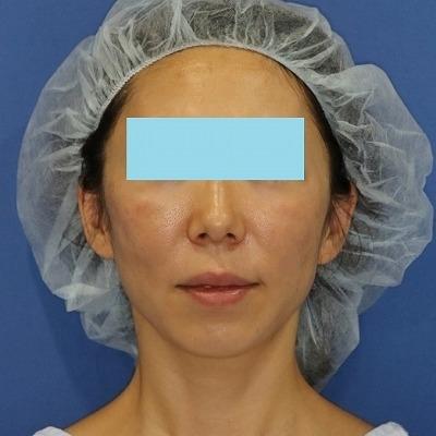 新宿ラクル美容外科クリニック 山本厚志 「ミントリフトⅡminiS flex(シークレットリフト)」 手術直後 3月31日