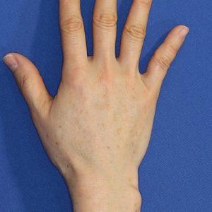 新宿ラクル美容外科クリニック 山本厚志 「手の若返り(ジュビダーム・ビスタ・ボリフト)」 治療後1週間目