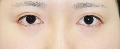 新宿ラクル美容外科クリニック 山本厚志 「目頭切開+目尻切開」 手術後3ケ月目 5月3日