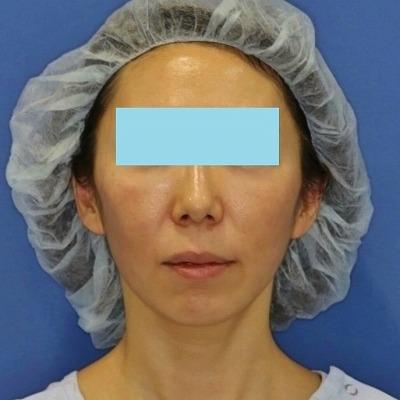 新宿ラクル美容外科クリニック 山本厚志 「ミントリフトⅡminiS flex(シークレットリフト)」 手術後2ヶ月目 4月16日