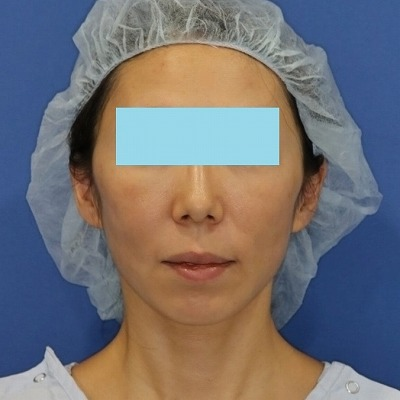 新宿ラクル美容外科クリニック 山本厚志 「ミントリフトⅡminiS flex(シークレットリフト)」 手術後1週間目 3月31日