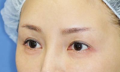 新宿ラクル美容外科クリニック 山本厚志 眉下切開法+目尻切開 手術後12ヶ月目 9月8日