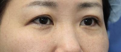 新宿ラクル美容外科クリニック 山本厚志 「切らない目の下のたるみ取り」「ジュビダームビスタ・ボリフト」手術後1ヶ月目