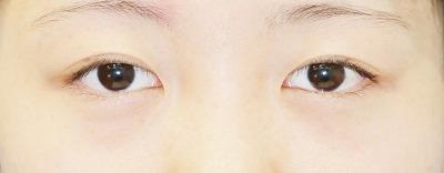 新宿ラクル美容外科クリニック 山本厚志 埋没法二重術(エクセレントアイ) 手術前(3月29日)