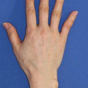 新宿ラクル美容外科クリニック 山本厚志 「手の若返り(ジュビダーム・ビスタ・ボリフト)」 治療後1ヶ月目