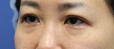 新宿ラクル美容外科クリニック 山本厚志 「切らない目の下のたるみ取り」「ジュビダームビスタ・ボリフト」手術前