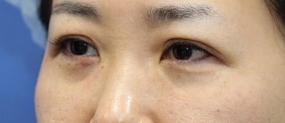 新宿ラクル美容外科クリニック 山本厚志 「切らない目の下のたるみ取り」「ジュビダームビスタ・ボリフト」手術直後