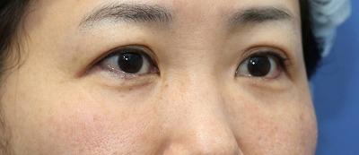 新宿ラクル美容外科クリニック 山本厚志 「切らない目の下のたるみ取り」「ジュビダームビスタ・ボリフト」手術後6ヶ月目 6月25日