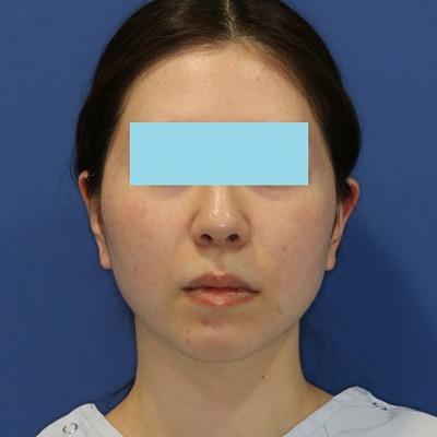 新宿ラクル美容外科クリニック 山本厚志 「サーマクールFLX」 治療前 4月4日
