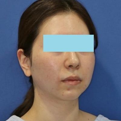 新宿ラクル美容外科クリニック 山本厚志 「サーマクールFLX」 治療直後 4月4日
