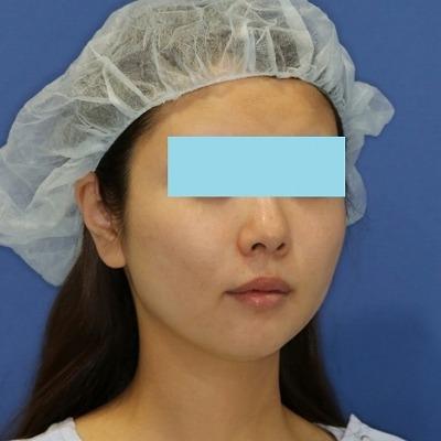 新宿ラクル美容外科クリニック 山本厚志 「ミントリフトⅡminiS flex(シークレットリフト)」 手術後2ヶ月目 4月27日