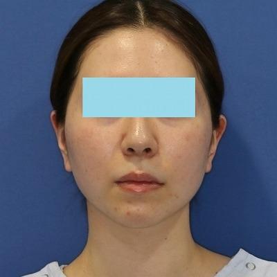 新宿ラクル美容外科クリニック 山本厚志 「サーマクールFLX」 治療後1週間目 4月4日
