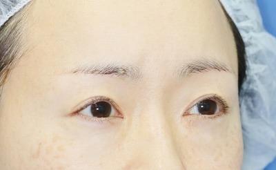 新宿ラクル美容外科クリニック 山本厚志 眉下切開法 手術後3ヶ月目 8月3日