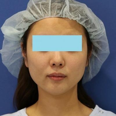 新宿ラクル美容外科クリニック 山本厚志 「ミントリフトⅡminiS flex(シークレットリフト)」 手術前 4月1日