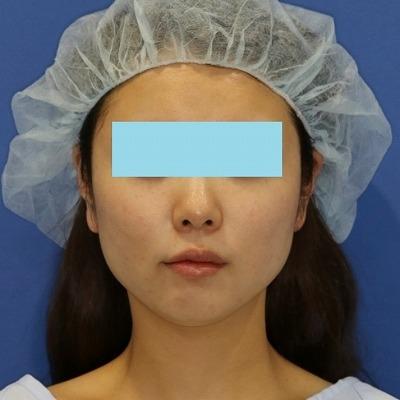 新宿ラクル美容外科クリニック 山本厚志 「ミントリフトⅡminiS flex(シークレットリフト)」 手術直後 4月1日