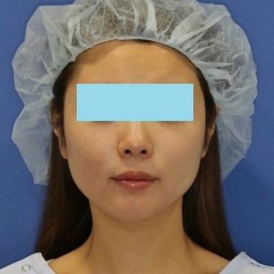 新宿ラクル美容外科クリニック 山本厚志 「ミントリフトⅡminiS flex(シークレットリフト)」 手術後1週間目 4月1日