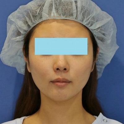 新宿ラクル美容外科クリニック 山本厚志 「ミントリフトⅡminiS flex(シークレットリフト)」 手術後3ヶ月目 6月11日