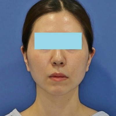 新宿ラクル美容外科クリニック 山本厚志 「サーマクールFLX」 治療後1ヶ月目 5月20日