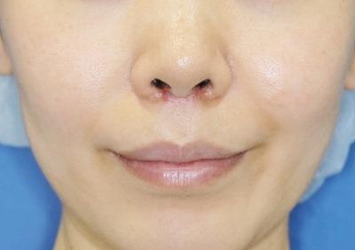 新宿ラクル美容外科クリニック 山本厚志 「人中短縮術(リップリフト)」 手術後2ヶ月目 5月26日