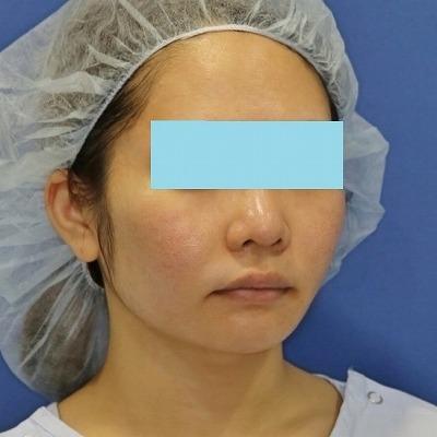 新宿ラクル美容外科クリニック 山本厚志 「ミントリフトⅡminiS flex(シークレットリフト)」 手術後6ヶ月目 5月31日