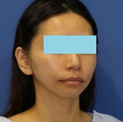 新宿ラクル美容外科クリニック 山本厚志 ナチュラルフェイスリフト 手術後1ヶ月目 6月9日