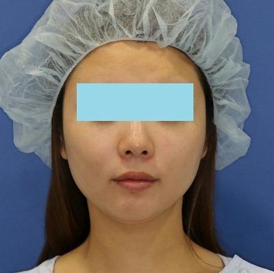 新宿ラクル美容外科クリニック 山本厚志 「ミントリフトⅡminiS flex(シークレットリフト)」 手術後1ヶ月目 4月1日
