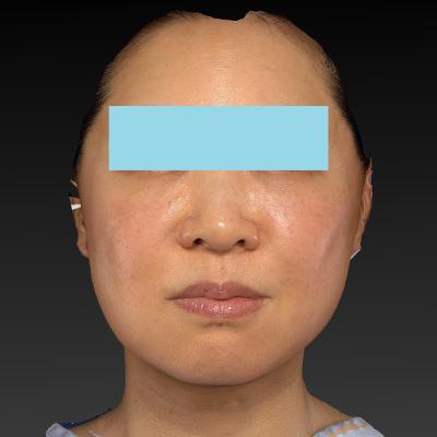 新宿ラクル美容外科クリニック 山本厚志 ナチュラルフェイスネックリフト 手術後1週間目 11月21日