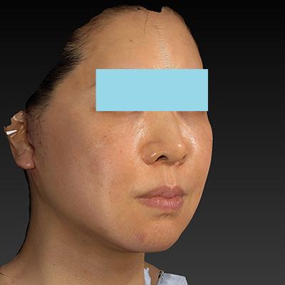 新宿ラクル美容外科クリニック 山本厚志 ナチュラルフェイスネックリフト 手術直後 11月21日