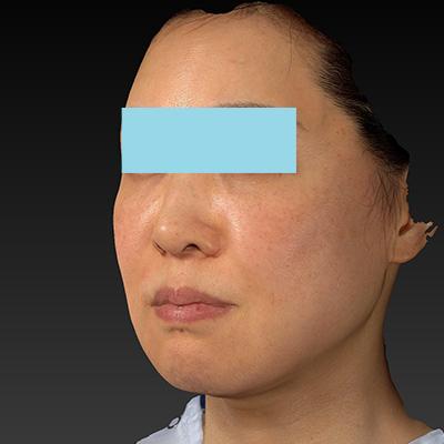 新宿ラクル美容外科クリニック 山本厚志 ナチュラルフェイスネックリフト 手術前 11月21日