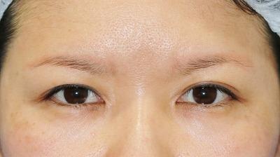 新宿ラクル美容外科クリニック 山本厚志 眉下切開法 手術前 5月1日