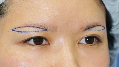 新宿ラクル美容外科クリニック 山本厚志 眉下切開法 デザイン 5月1日