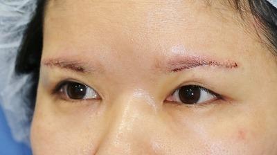 新宿ラクル美容外科クリニック 山本厚志 眉下切開法 手術直後 5月1日