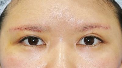 新宿ラクル美容外科クリニック 山本厚志 眉下切開法 手術後1週間目 5月1日
