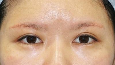 新宿ラクル美容外科クリニック 山本厚志 眉下切開法 手術後1ケ月目 5月1日