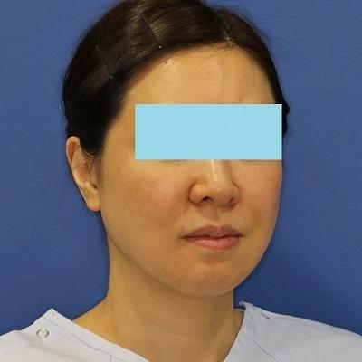 新宿ラクル美容外科クリニック 山本厚志 ナチュラルフェイスネックリフト 手術前 5月13日