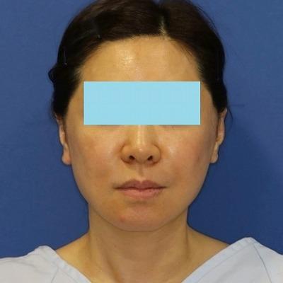新宿ラクル美容外科クリニック 山本厚志 ナチュラルフェイスネックリフト 手術直後 5月13日