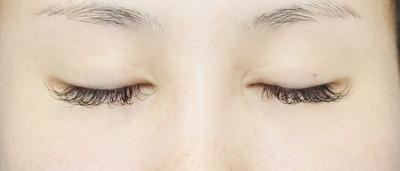 新宿ラクル美容外科クリニック 山本厚志 「全切開二重術+上まぶたの脂肪取り」 手術後6ヶ月目 8月6日
