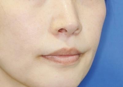 新宿ラクル美容外科クリニック 山本厚志 「人中短縮術(リップリフト)」 手術後2ヶ月目 6月6日